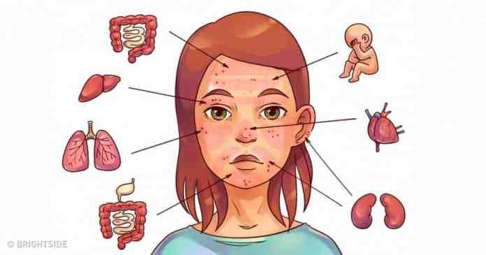 6 probleme de sanatate care ne sunt semnalate de aparitia cosurilor pe fata