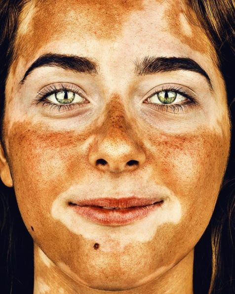 girl with vitiligo