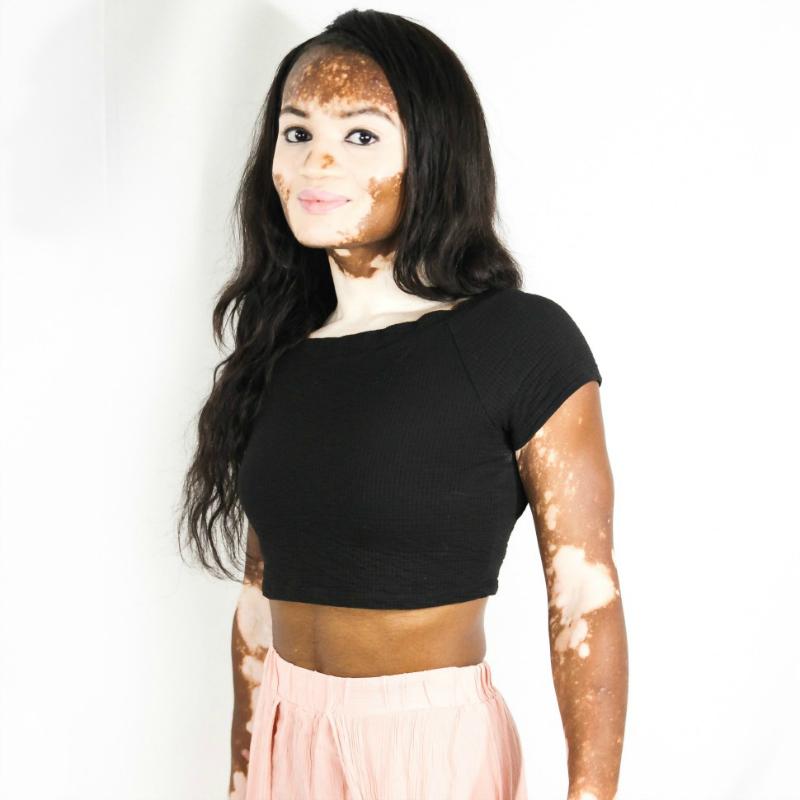 Winnie Harlow Costume Inspires Woman With Vitiligo To Go Makeup Free