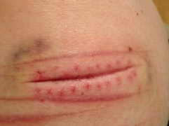 Photos #selfharm Could be triggering (3/6)