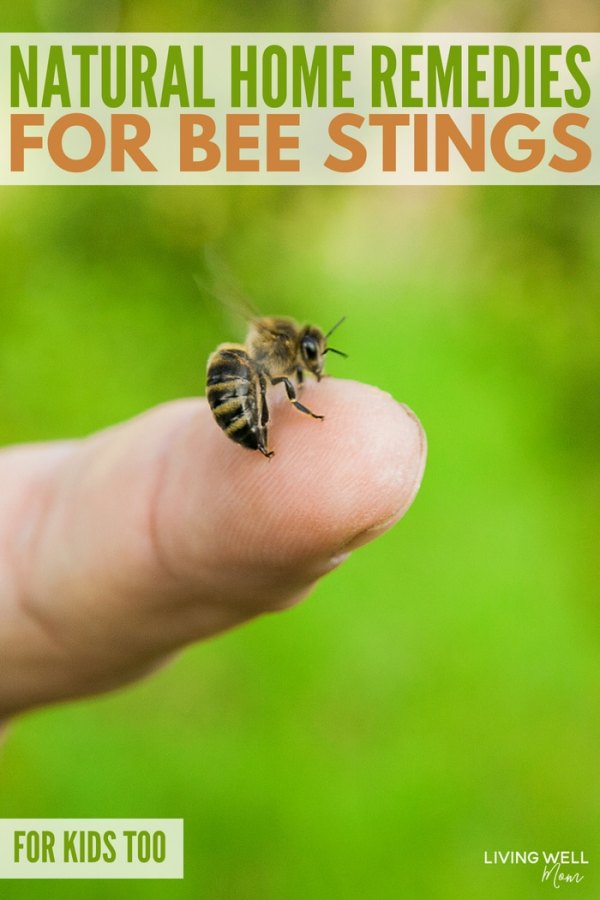 natural home remedies for bee stings