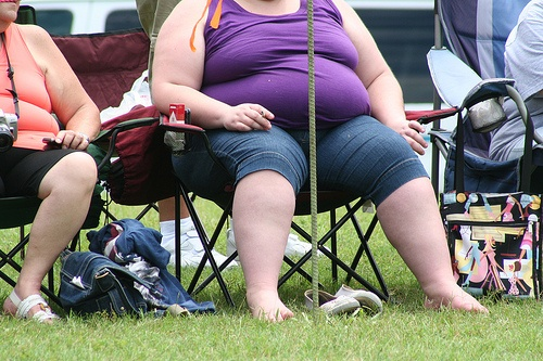 obesity females photo
