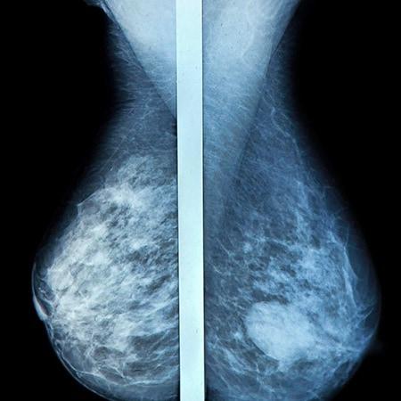 hvad er brystkræft