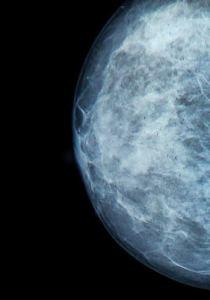 Screening for brystkræft er for kvinder mellem 50-69 år