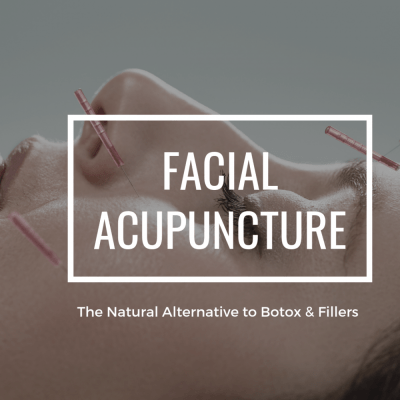 Facial Acupuncture - The Natural Alternataive to Botox