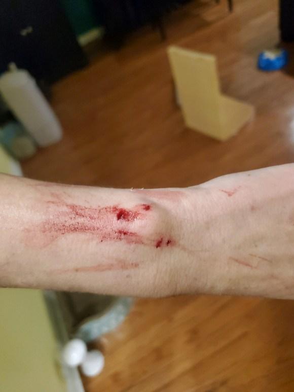 Cat bite on wrist