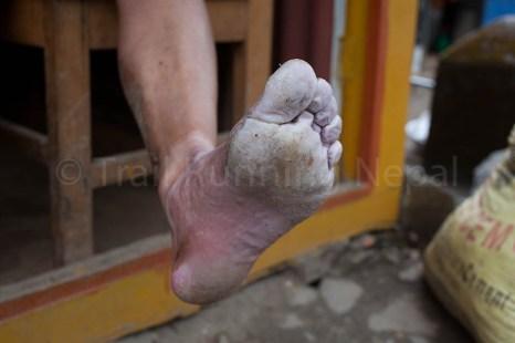 soggy feet