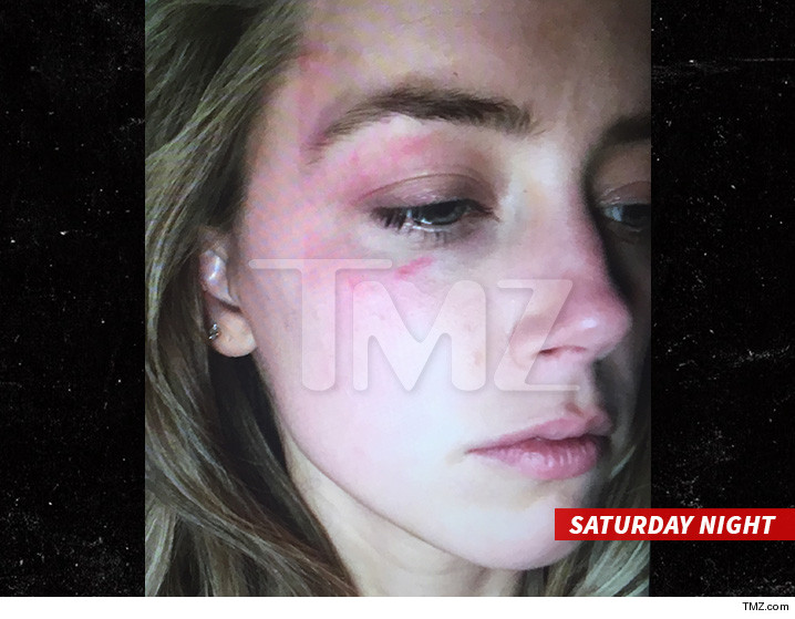 0527-amber-heard-injury-tmz