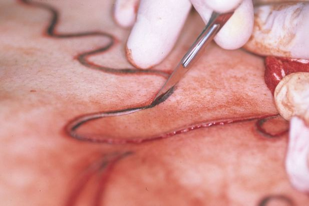 Scarring close up photo cutting skin body modification Japan 1