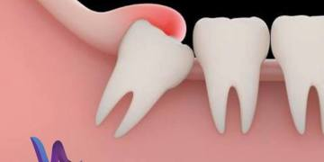 Should I have my wisdom teeth removed?