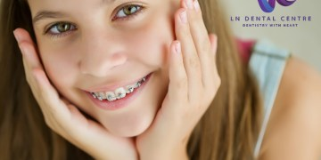 Six Steps To Your Braces Treatment