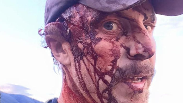 http://www.mensjournal.com/adventure/articles/this-man-survived-a-worst-case-bear-attack-heres-how-w443088