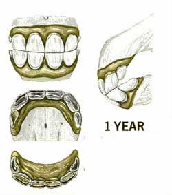 Age a horse from teeth growth