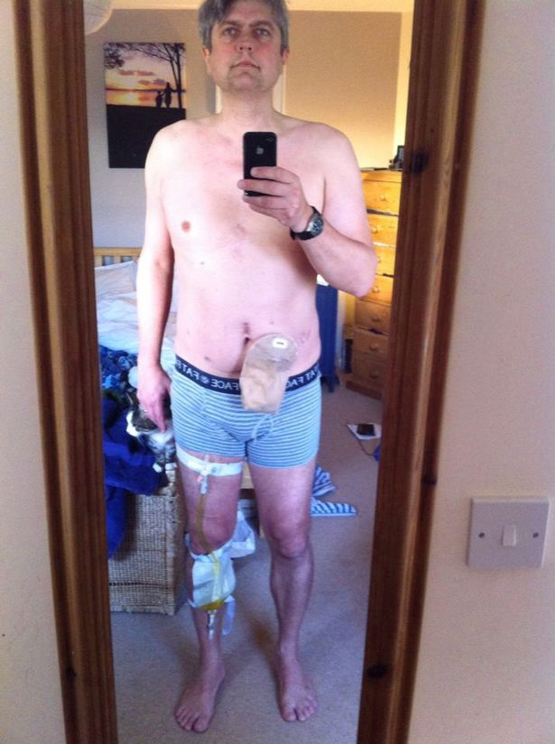 Prostate cancer survivor posts selfie in just his underpants to warn others about disease