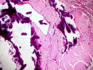 Amyloidosis,_dystrophic_calcification,_H&E