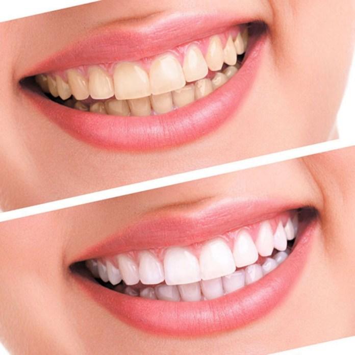 Ultra White dentes brancos