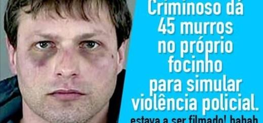 Criminoso bate nele próprio para simular violência policial
