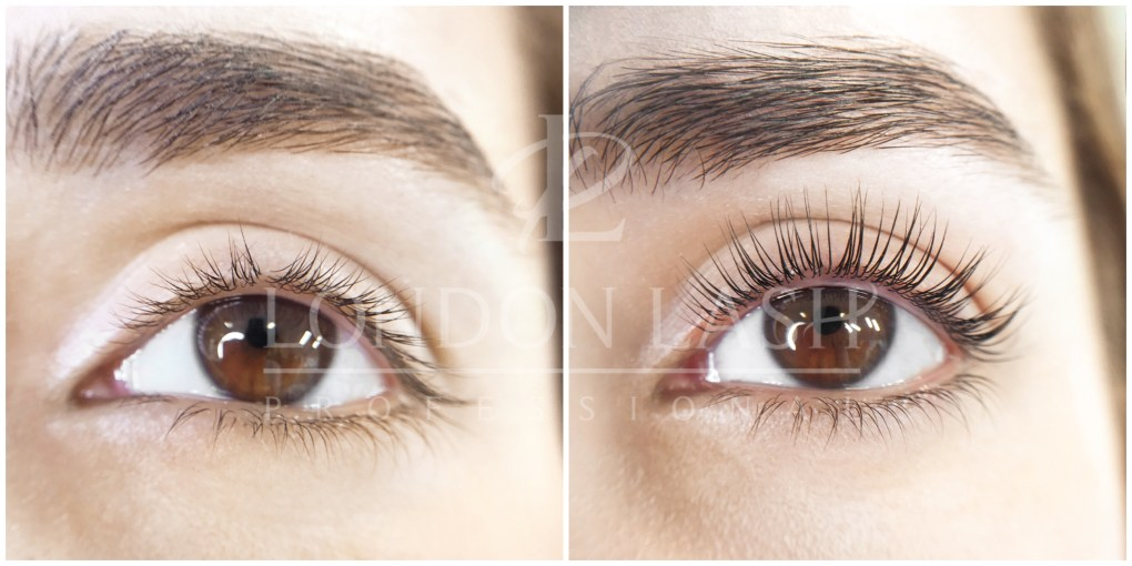 Before and after Lash Filler treatment. Natural lashes are curly, thicker and darker.