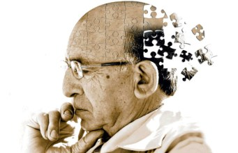 Alzheimer's Disease, Artificial Intelligence