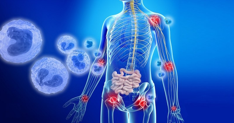 The human microbiome and inflammation.
