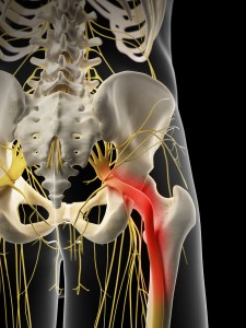 Sciatica Treatment Chiropractic Longmont