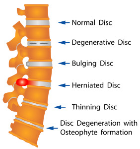 Herniated Disk Chiropractic Longmont