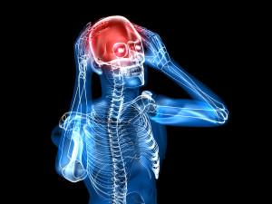 Fun 3D generated illustration of a headache