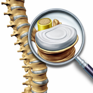 spinal traction Longmont