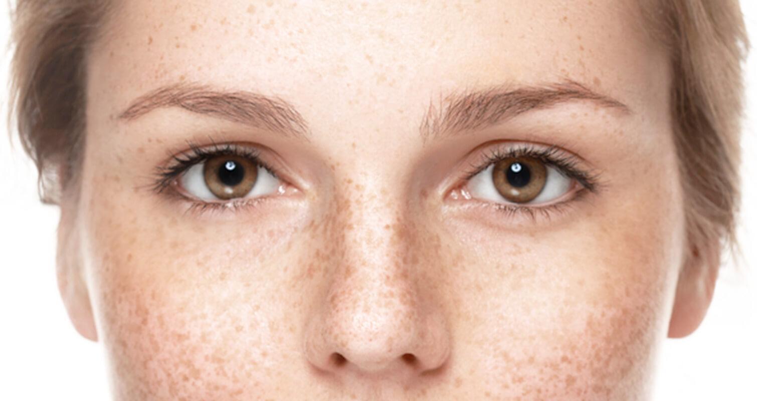 Augen unterschiedlich große unterschiedlich große