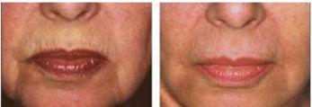 Microneedling – Lower Face wrinkles B&A