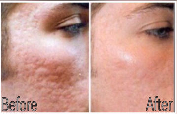 Microneedling acne scars B & A