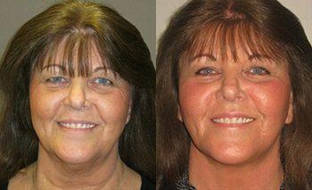 Facelift by Dr. Brian Machida, facial plastic surgeon, Inland Empire, CA, Los Angeles,California