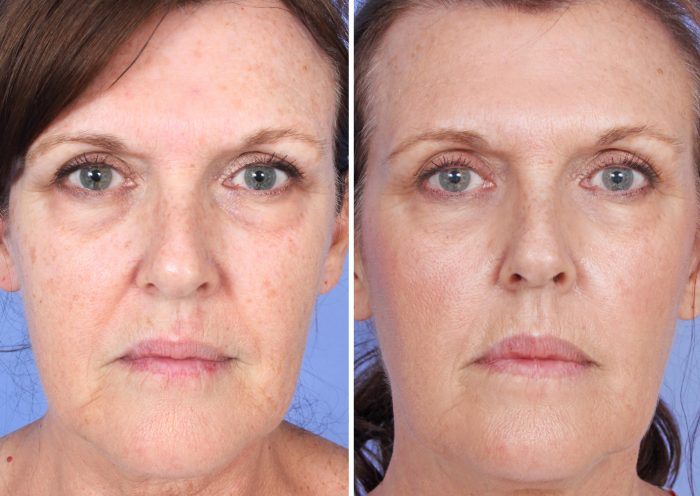 microneedling-orange-county-before-after