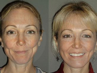 facelift cost Inland Empire, facelift cost, facial plastic surgery, cost, Dr. Brian Machida