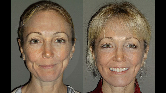 facelift, facelift during COVID-19, facelift during pandemic,facelift cost Inland Empire, facelift cost, facial plastic surgery, cost, Dr. Brian Machida