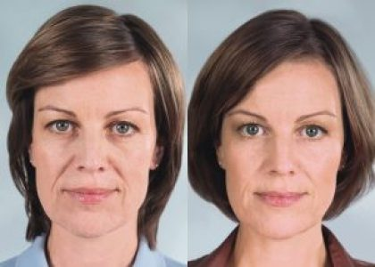 Sculptra Before and After, a filler that's different from Juvederm, Restyland and Radiesse