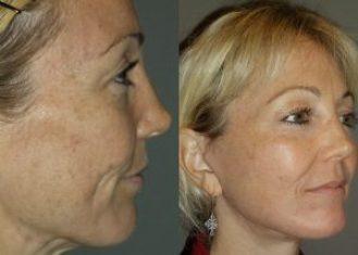 Patient 4 RS Before & After (Dr. Machida)