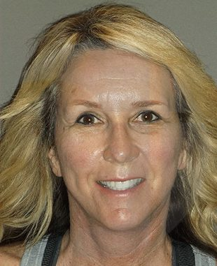patient-55-after-facelift-browlift-by-dr-brian-machida