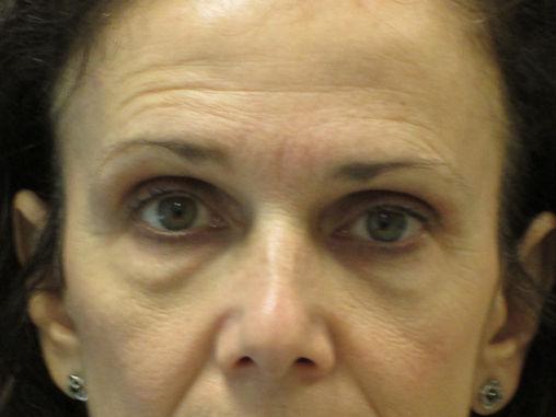 eileen-58-before-upper-and-lower-blepharoplasty