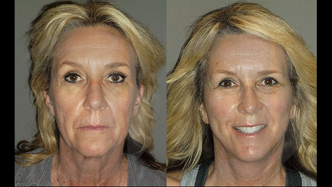 ff-before-after-facelift-browlift-by-dr-brian-machida