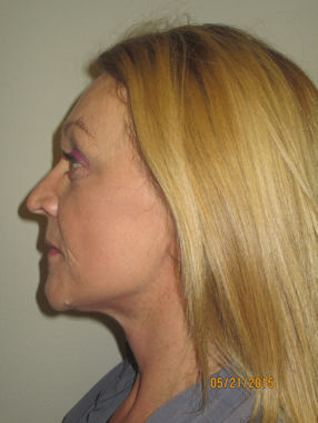 female-55-after-facelift-and-browlift-by-dr-arnold-almonte