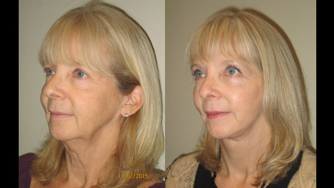 female-58-before-and-after-facelift-upper-lower-eyelid-surgery-by-dr-arnold-amonte