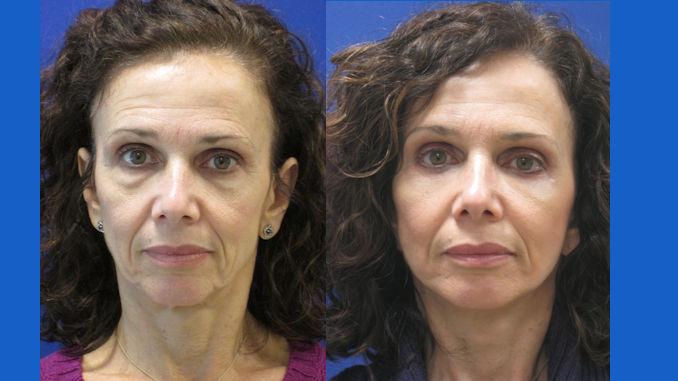 facelift Cleveland, neck lift Cleveland, blepharoplasty Cleveland, eyelid surgery Cleveland by Dr. Ritu Malhotra