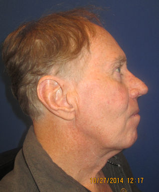 male-68-before-facelift-and-blepharoplasty-by-dr-arnold-almonte
