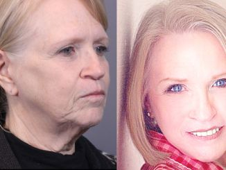 Before and after facelift by Dr. David Santos, plastic surgeon in metro Seattle Washington