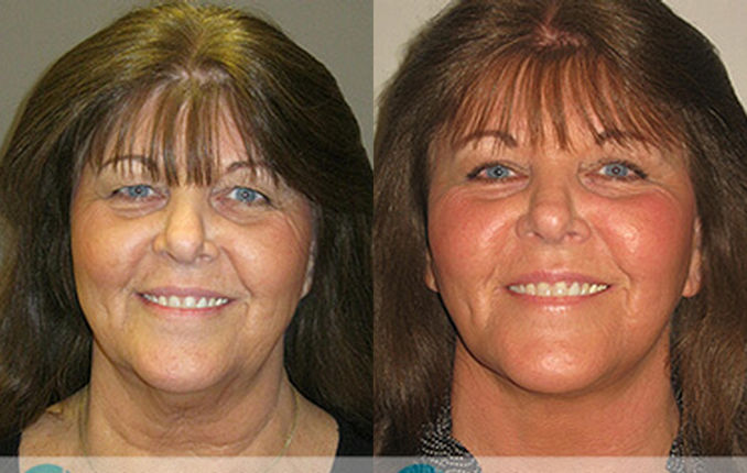 Facelift, neck lift by Dr. Brian Machida, facial plastic surgeon, Inland Empire, California
