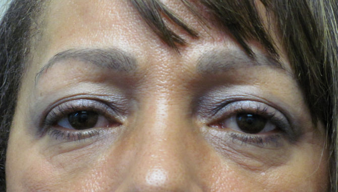 2-Before upper blepharoplasty by Dr. Arnold Almonte, plastic surgeon, Roseville, CA