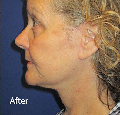 After facelift, necklift by Dr. Mitchell Blum, facial plastic surgeon, Tracy, CA