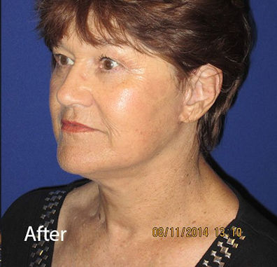 After neck lift by Dr. Mitchell Blum, facial plastic surgeon, San Francisco, Tracy, California