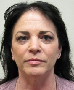 Before blepharoplasty by Dr. Arnold Almonte, plastic surgeon, Sacramento, California